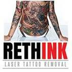 Rethink Laser Tattoo Removal